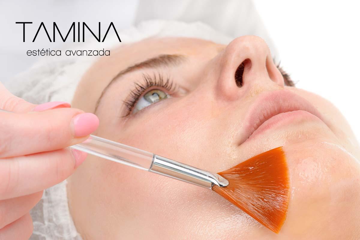 tamina-estetica-valencia-tratamientos-faciales-Peeling-quimico