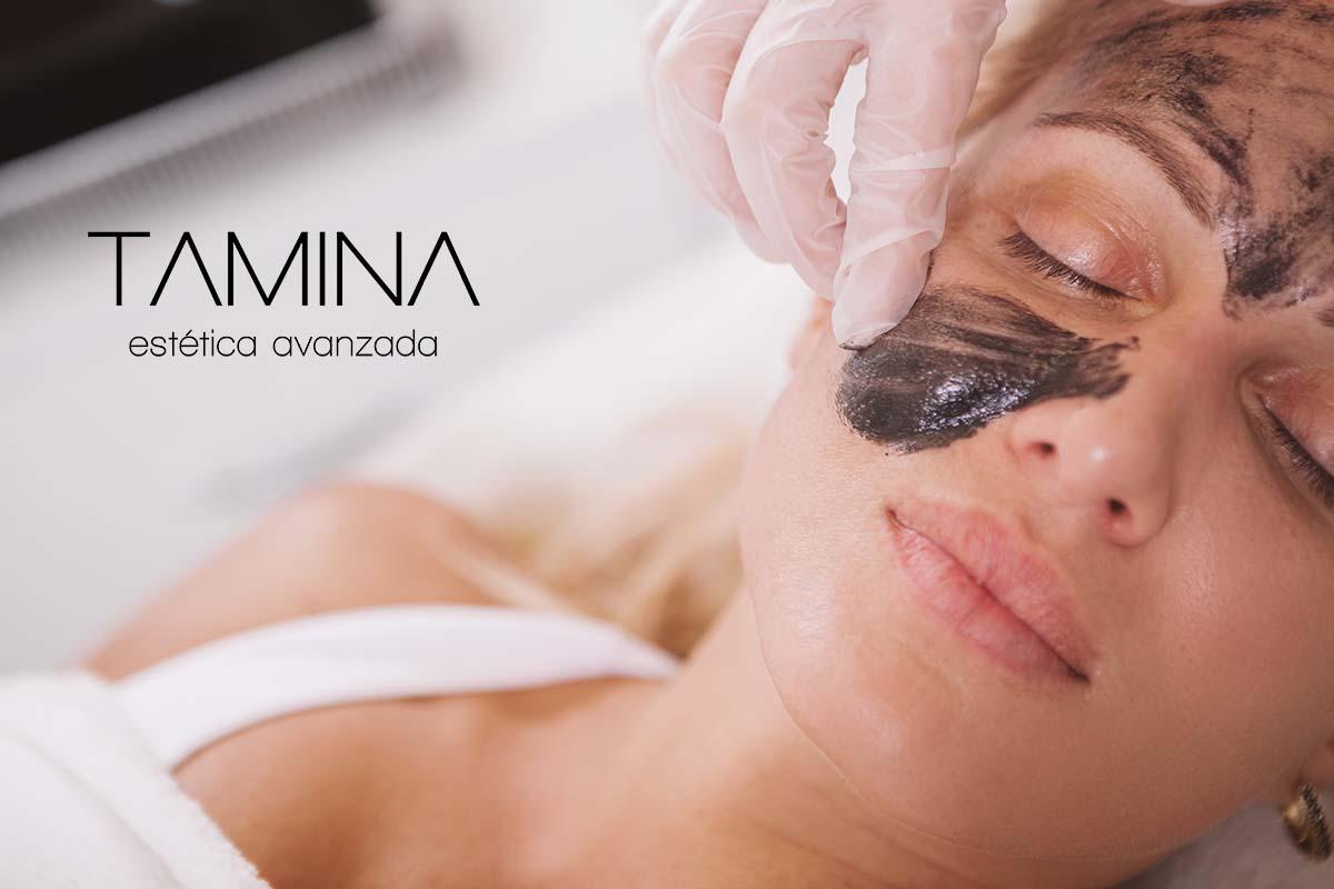 tamina-estetica-valencia-tratamientos-faciales-Pelling-Carbono